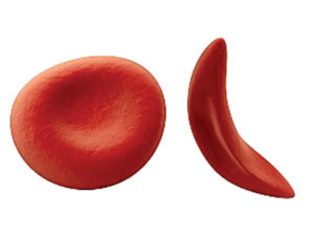 Анемия с поражением эритроцита