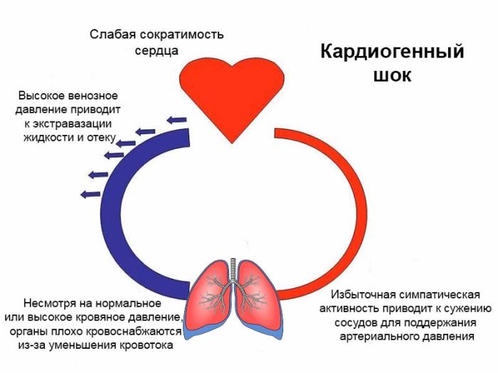 кардиогенный шок