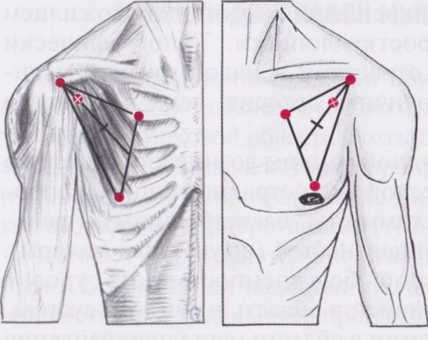 Проведение операции при синдроме малой грудной мышцы
