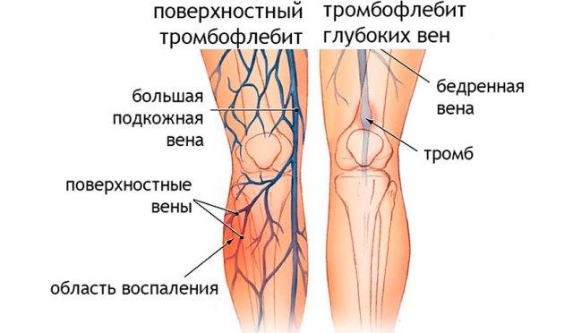 Тромбофлебит - одна из причин развития экземы