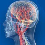 Гипоплазия артерии мозга