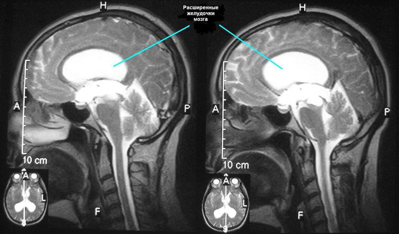 Результаты рентген при гидроцефалии