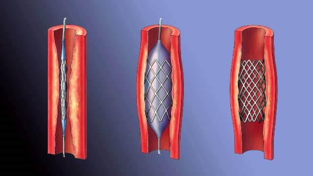 Стентирование и баллонное расширение сосуда при тромбозе