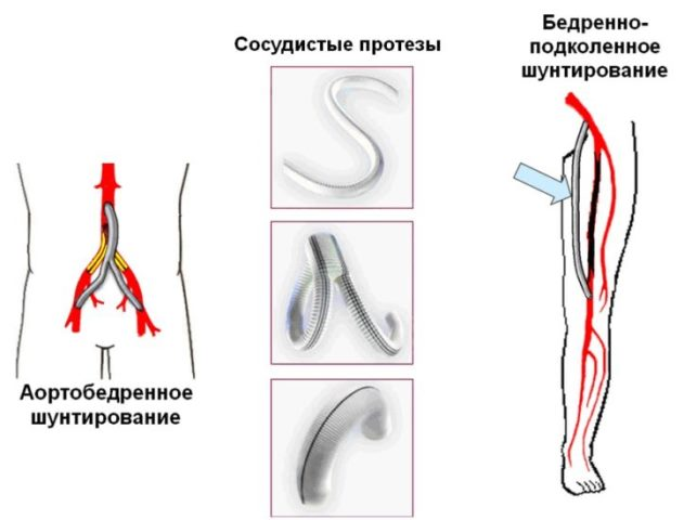 Шунтирование сосуда при тромбозе