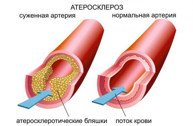 Показания к назначению антиоксидантов
