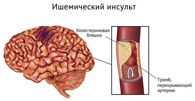 Показания к назначению препарата Винпоцетин