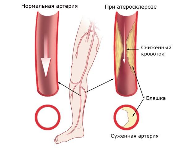 Сужение сосудов ног