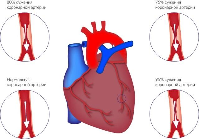 Сужение сосудов сердца