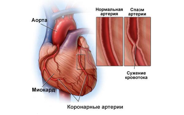 Сужение кровеносных сосудов сердца