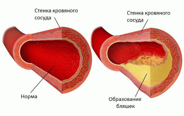 Холестериновые бляшки на стенках сосудов