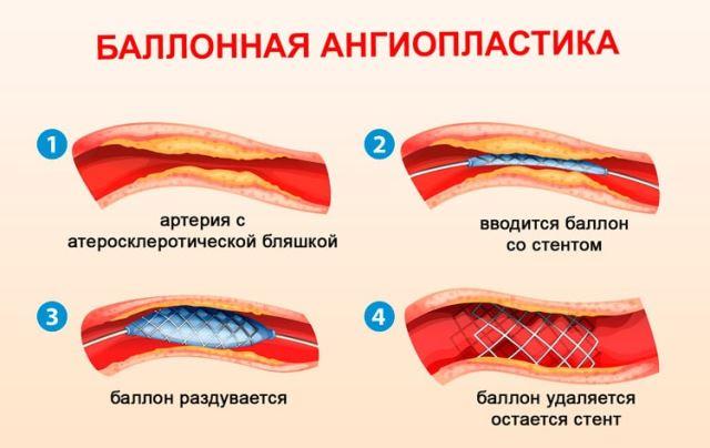 Ангиопластика после инсульта