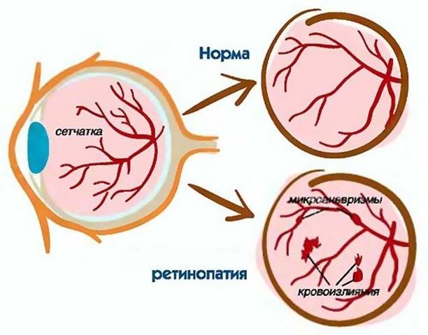 Ретинопатия после кровоизлияния в головной мозг