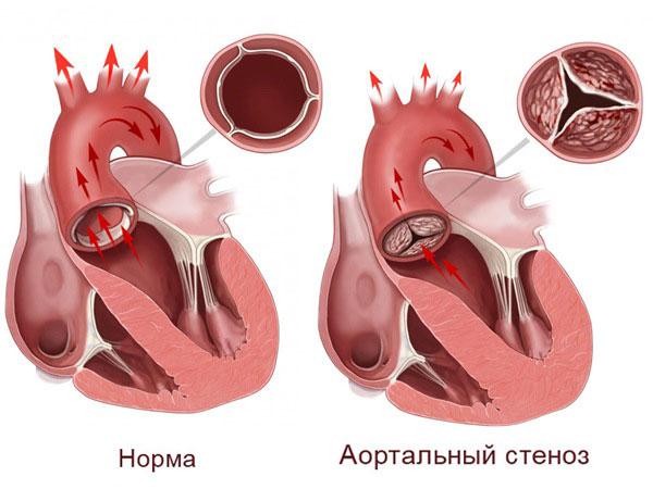 Сужение аортального клапана
