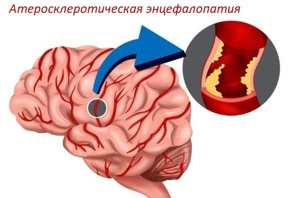 Атеросклеротическая энцефалопатия