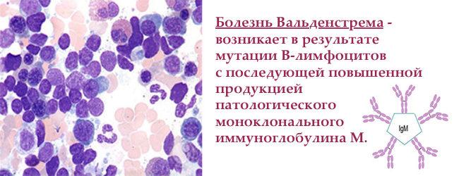 Болезнь Вальденстрема