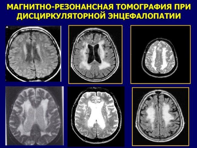 Дисциркуляторная энцефалопатия на МРТ