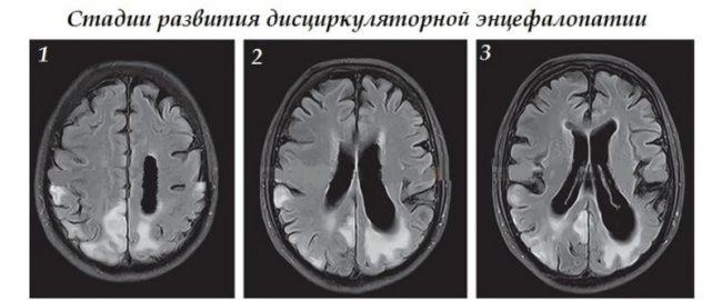 Стадии дисциркуляторной энцефалопатии