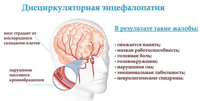 Симптомы дисциркуляторной энцефалопатий
