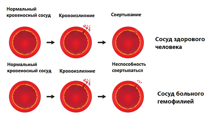 Гемофилия у мужчин