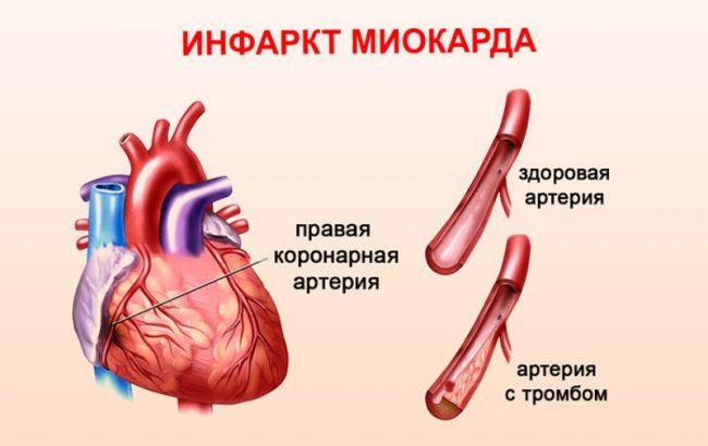 Инфаркт миокарда после стентирования
