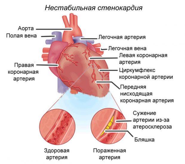 Нестабильная стенокардия