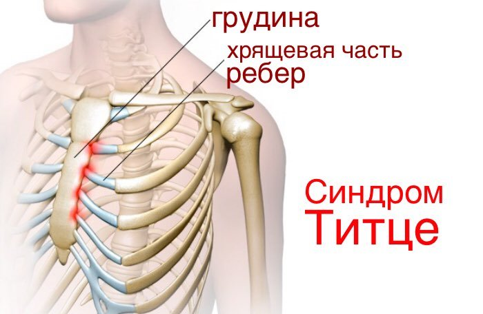 Синдром Титце