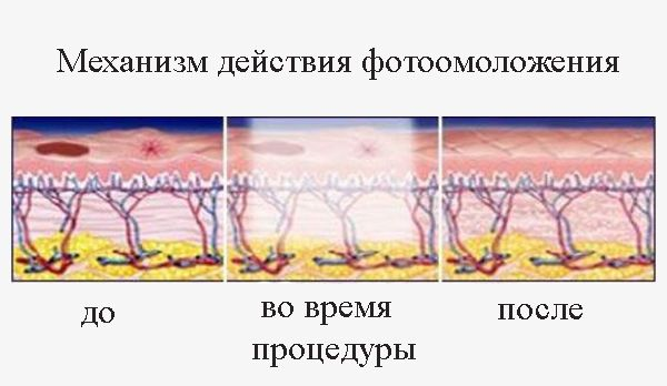 Фотоомоложение