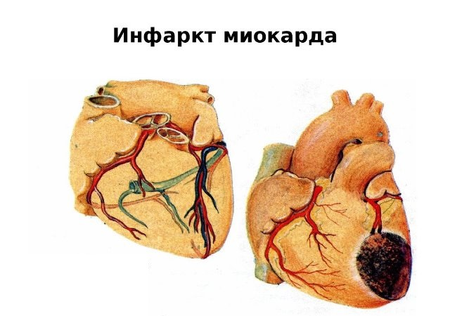 Инфаркт миокарда при низком нижнем давлении