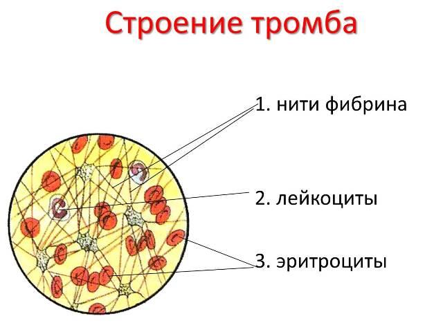 Строение тромба