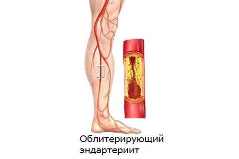 Инъекции тромболитиков