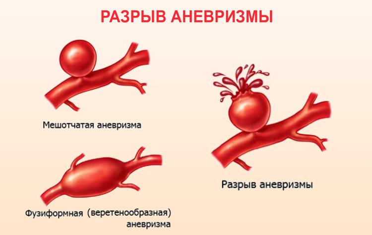 Исследование крови на общую альфа-амилазу