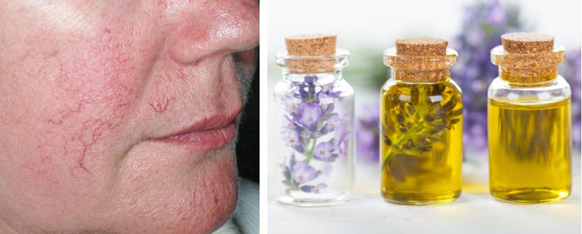 Эфирные масла при сосудистой сетке на лице