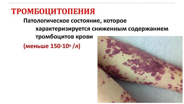 Тромбоцитопения