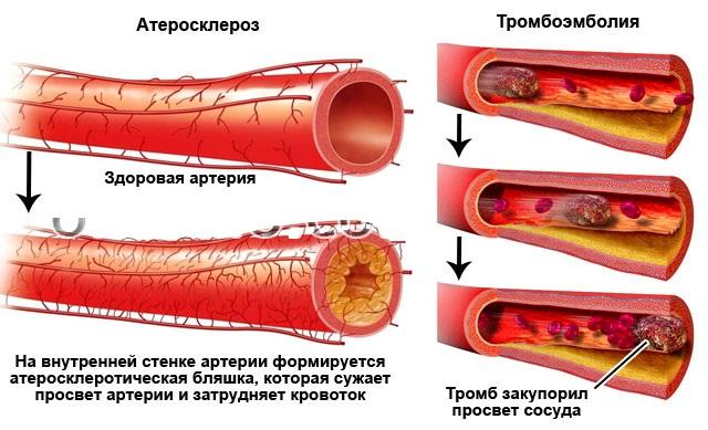 Тромбоз и атеросклероз