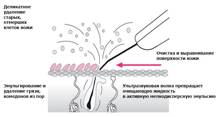 Как действует ультразвуковой пилинг