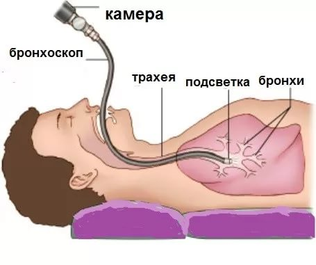 бронхоскопия рисунок