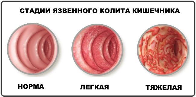 стадии язвенного колита кишечника