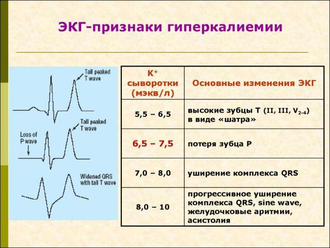 экг признаки гиперкалиемии