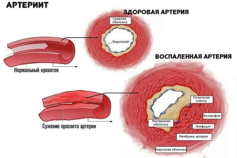 Воспаление артерии