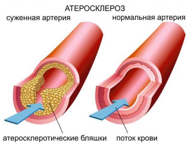 Производные никотиновой кислоты назначают при атеросклерозе