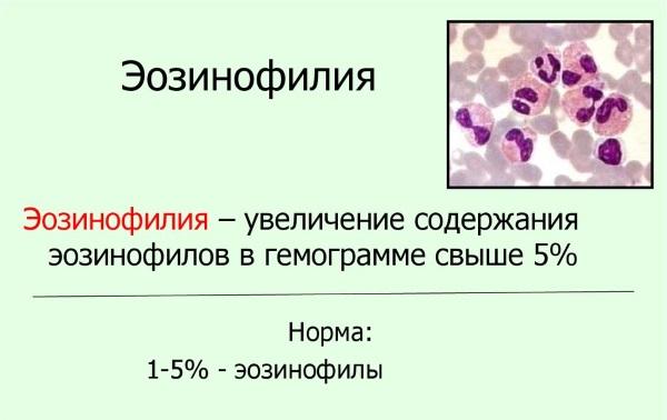 Повышение эозонофилов