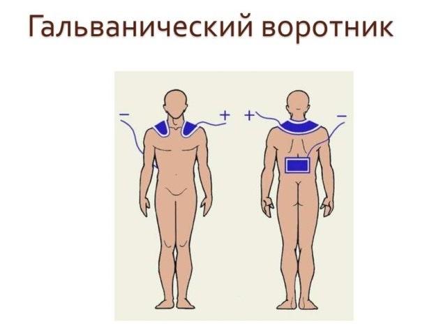 Гальванический воротник при венозной дисфункции