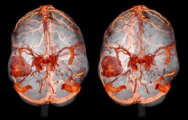 МРТ с контрастом при венозном застое