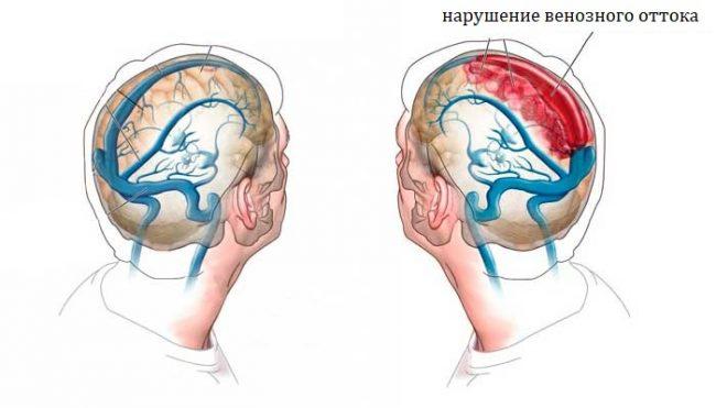 Нарушение венозного оттока