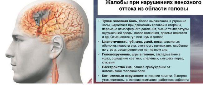 Симптомы при нарушениях венозного оттока