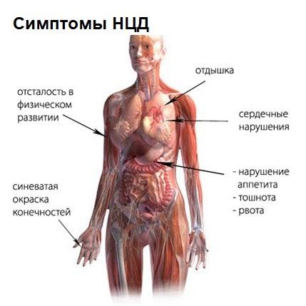 Нейроциркуляторная дистояния
