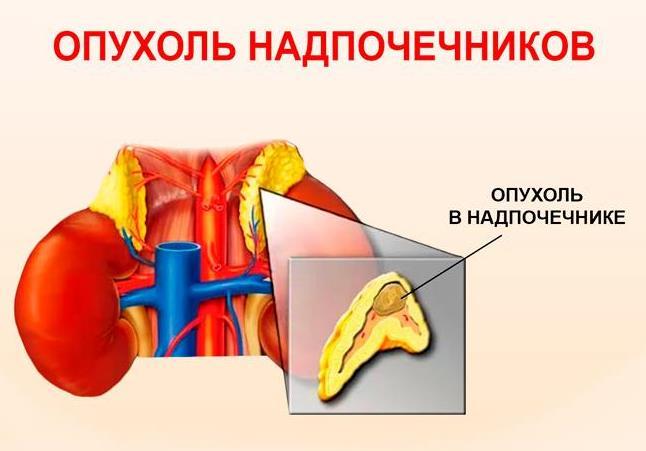 Опухоль надпочечников