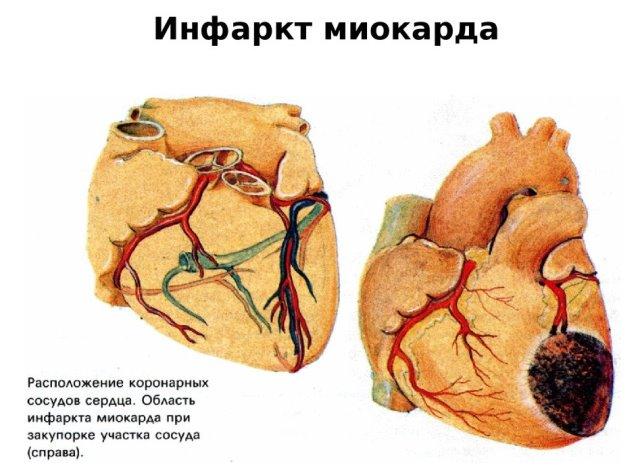 Мало эозинофилов в крови