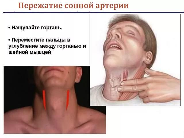 Пережатие сонной артерии