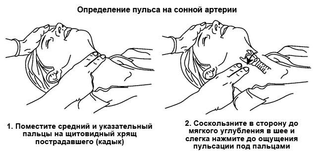 Пульс на сонной артерии